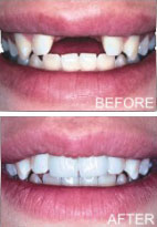 Dental Implants by Langdon & Mango