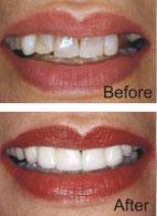 Dental Crowns and Bridges by Langdon & Mango