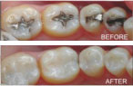 Greensboro white fillings for teeth from Langdon & Mango