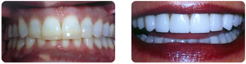 Before and After Veneers by Dr. Mike Mango