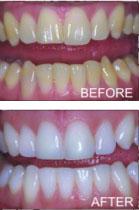 Greensboro Teeth Whitening by Langdon & Mango