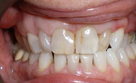 visible cracks in front teeth