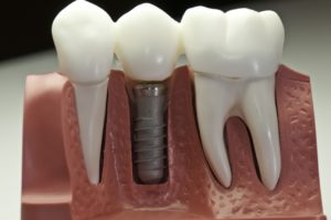 Dental Implants to Replace a Missing Tooth