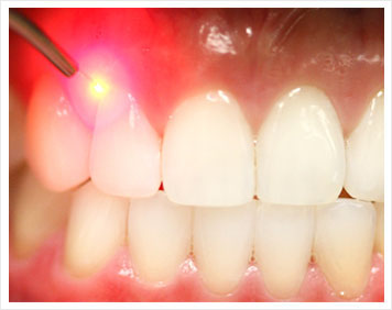 Laser gum contouring at Drs. Mango & Langdon dentist in Greensboro