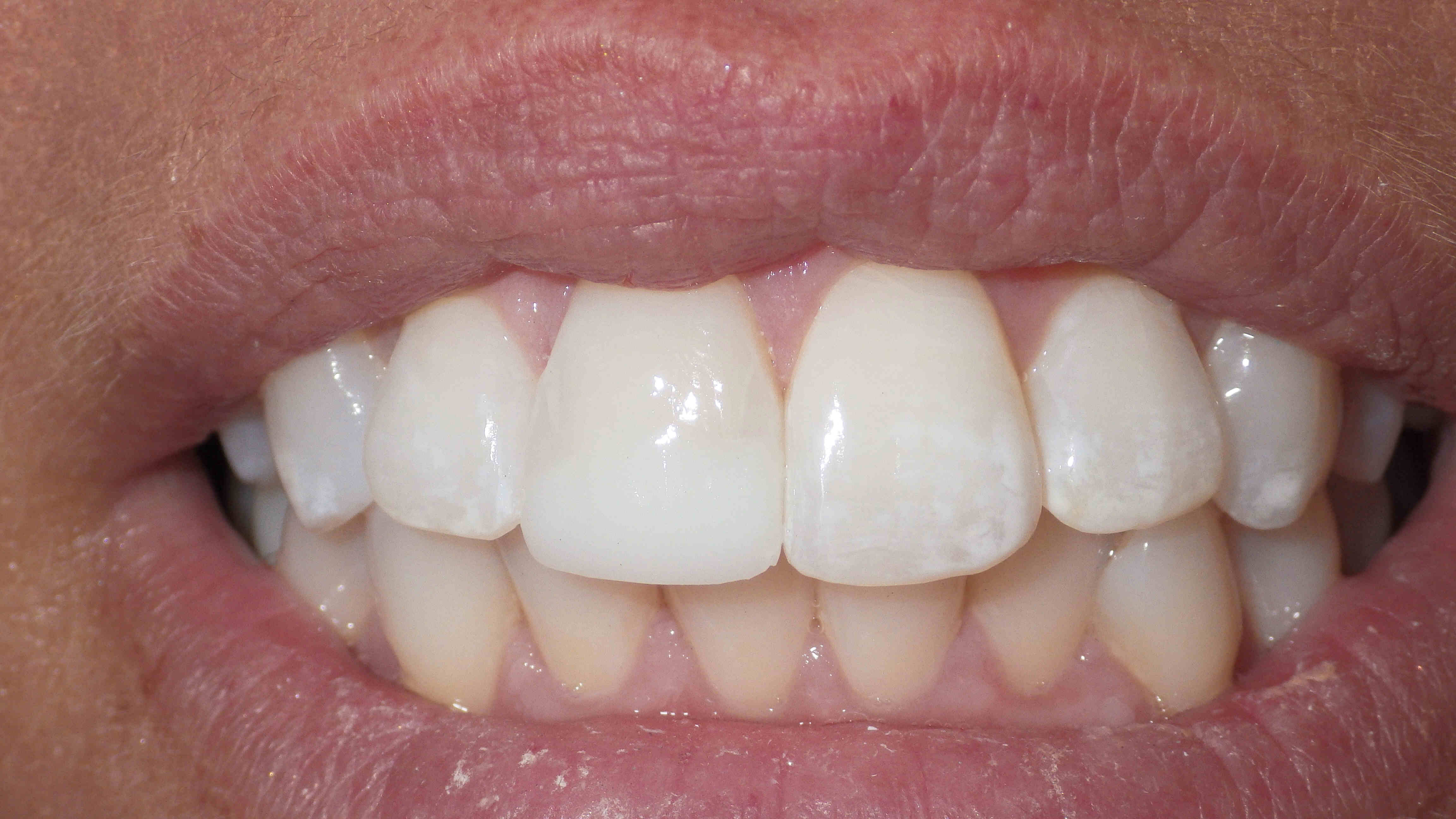 Photo of Restored Chipped Tooth