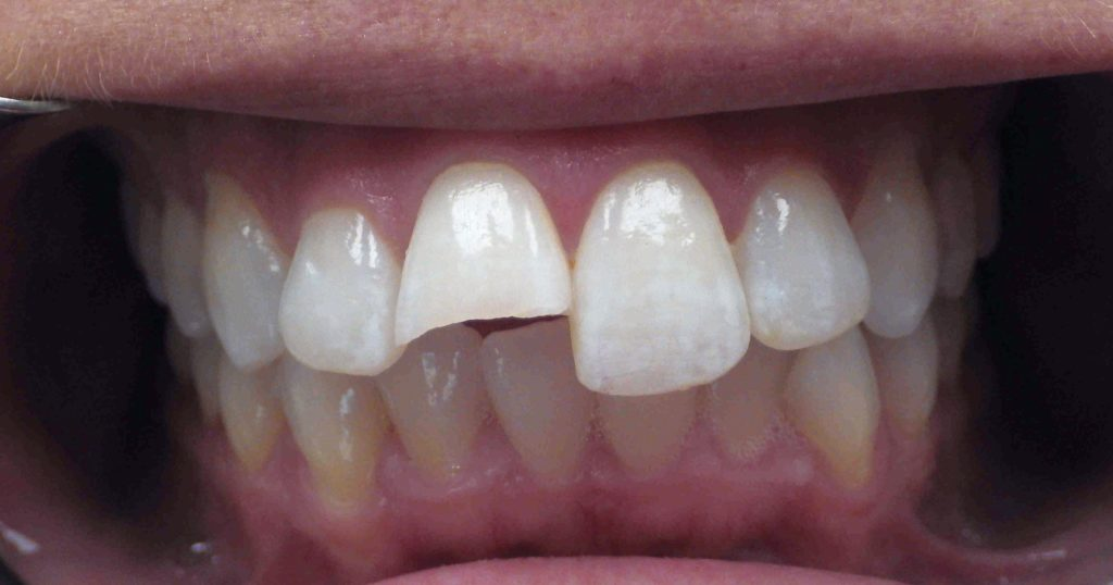 chipped tooth before bonding- 2018