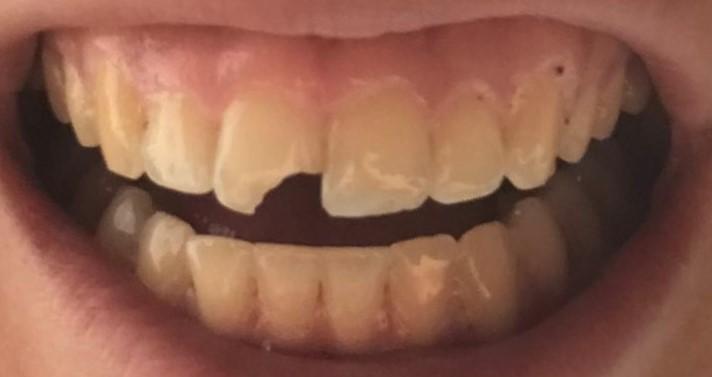 broken tooth before bonding