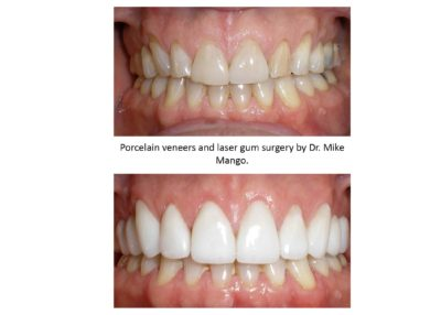 Before and After Porcelain Veneers and Laser Gum Surgery
