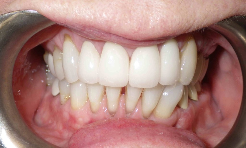 Dental Implant and Crown by Dr. Mike Mango May 2019