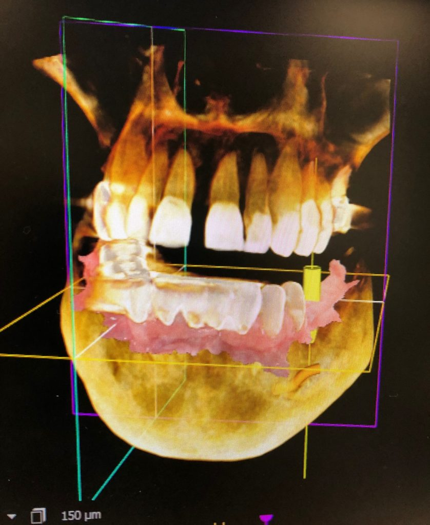 3D Imaging for Dental Implants