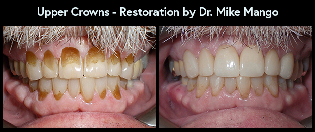 Dental Crown Restoration