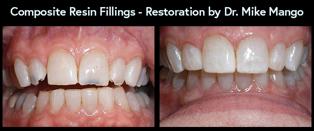 Dental Composite Resin Fillings