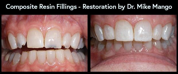 Dental Composite Resin Fillings