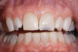 Before Dental Mouth Restoration
